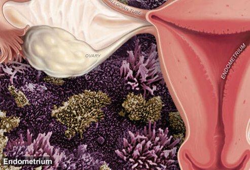 Осложнения эндометриоза матки
