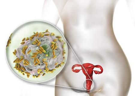 Женщина с кучей инфекций во влагалище